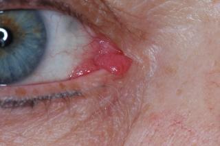 papilloma ocular)